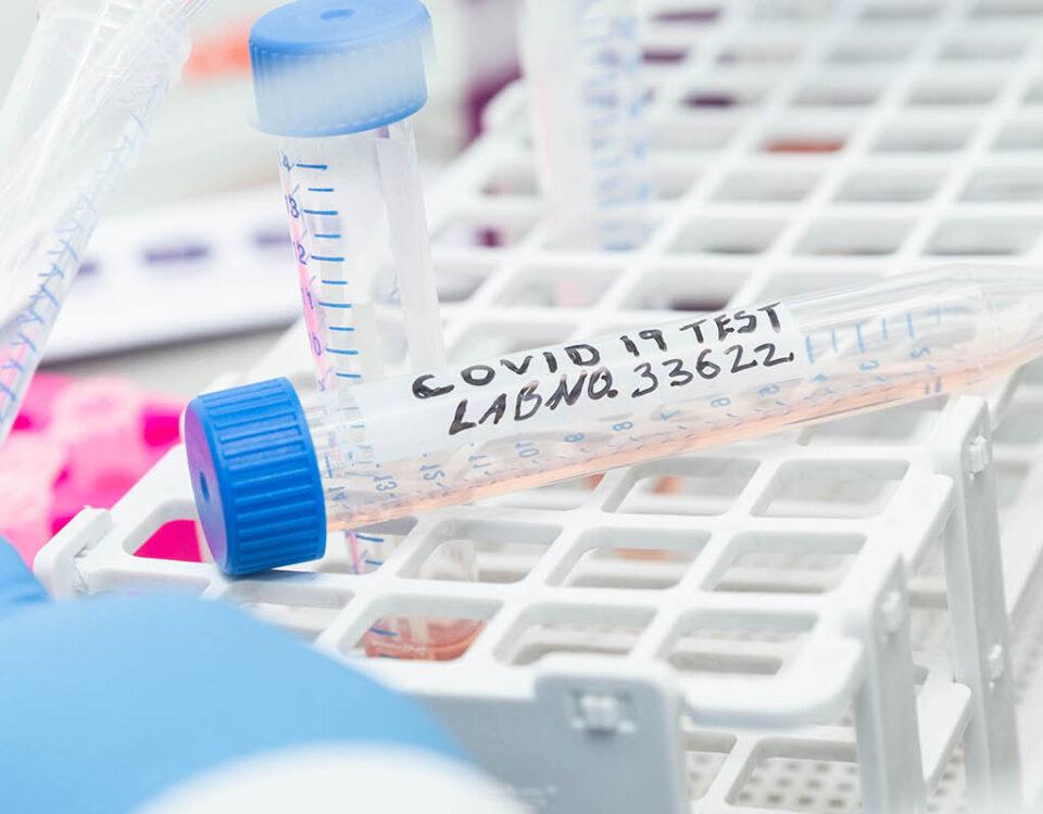 CLS Covid-19 RT-PCR testing